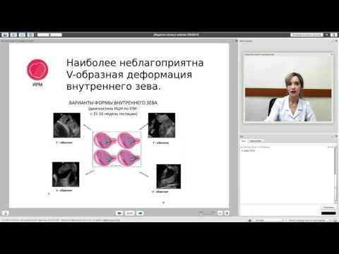 Истмико-цервикальная недостаточность при беременности (акушер-гинеколог Хорун В.Г.)