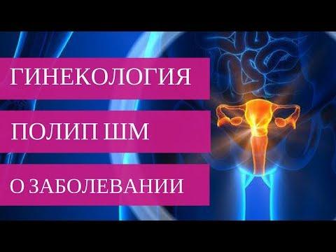 ПОЛИП ШЕЙКИ МАТКИ - о заболевании
