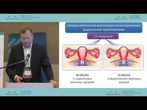 Лапароскопическая радикальная трахелэктомия в лечении инвазивного рака шейки матки