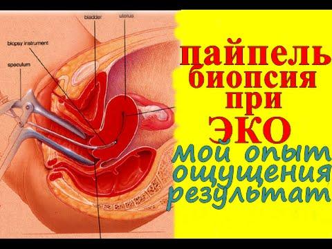 Пайпель биопсия эндометрия, в цикле ЭКО, ощущения, ВЛОГ.