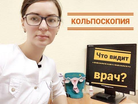 Что нужно знать женщине о кольпоскопии шейки матки