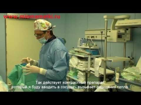 Эмболизация миомы матки в Перинатальном Центре