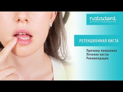 26. Что такое ретенционная киста? Натадент