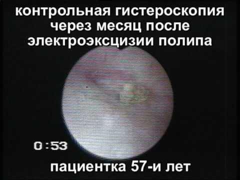 Струп на месте удалённого полипа эндометрия. Контроль.