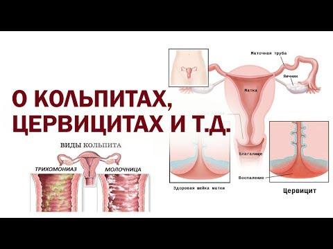 О кольпитах, цервицитах и т.д. - Др. Елена Березовская