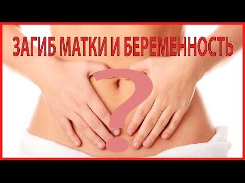 = ЗАГИБ МАТКИ (Ретрофлексия) и БЕРЕМЕННОСТЬ =