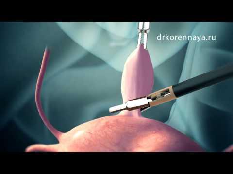 Миома матки. Хирургическое лечение.