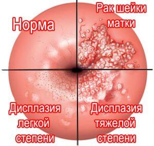 Симптомы и лечение дисплазии шейки матки 3 степени