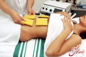 Методики радиоволнового лечения эрозии шейки матки