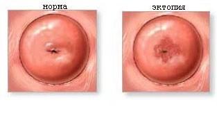 Эрозия шейки матки - причины, симптомы, лечение