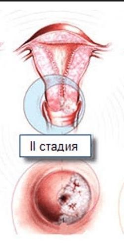 Cin 1 2 степени что это — Твой гинеколог