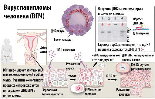 Особенности течения заболевания при поражении шейки матки