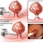 Радионож вируса папилломы человека на шейке матки