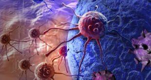 Рак шейки матки на 4 стадии развития