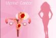 Рак шейки матки на 2 стадии развития