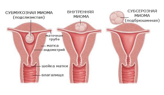 Миома матки по задней стенке и возможная беременность