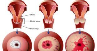 Выживаемость при раке шейки матки на различных стадиях
