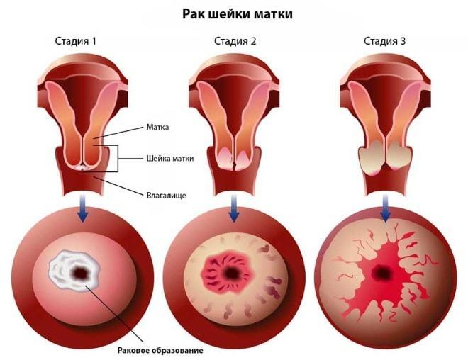 Рак шейки матки - характеристика недуга