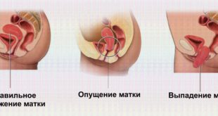 Выпадение матки у женщин пожилого возраста - операционное и безоперационное лечение