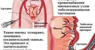 Эмболизация маточных артерий (ЭМА) для лечения миоматозных узлов