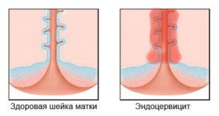 Эндоцервицит