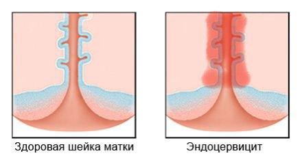 Этиология эндоцервицита