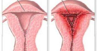 Эндометриоз матки - доступным языком