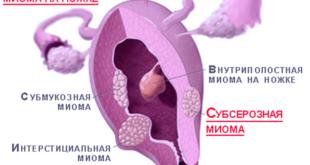 Субсерозная интрамуральная миома матки