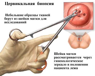 Биопсия шейки матки перед прижиганием эрозии шейки матки — Сам себе Доктор