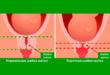 Что такое длина шейки матки?