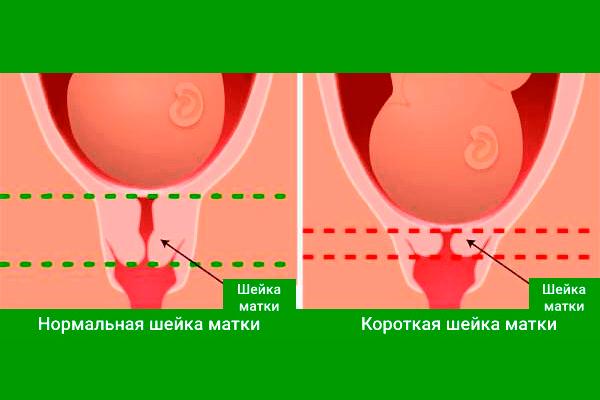Длина шейки матки