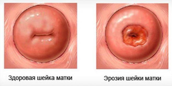 Эктопия шейки матки и эрозия шейки матки