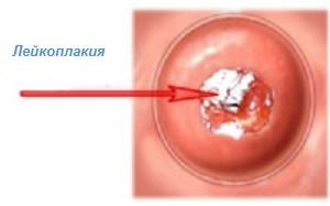 Гиперкератоз шейки матки лечение