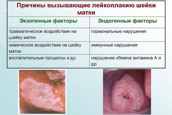 Причины лейкоплакии