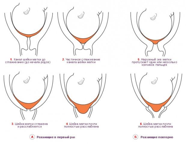 Важность предродовой зрелости шейки матки