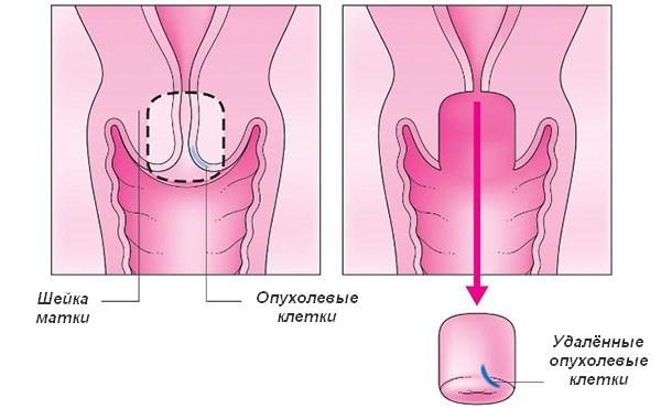 Трахелэктомия