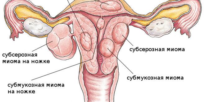 Миома матки. Ее симптомы, лечение, признаки, причины и последствия