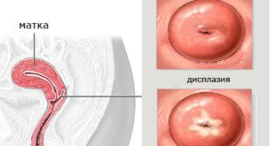 Лечение дисплазии шейки матки 3 степени без операции