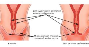 Виды реактивных изменений эпителиального слоя матки