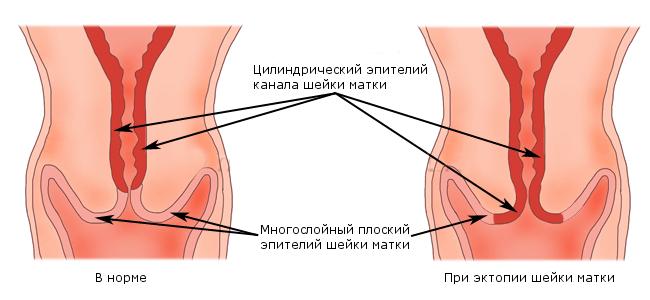 Эпителий матки и шейки матки