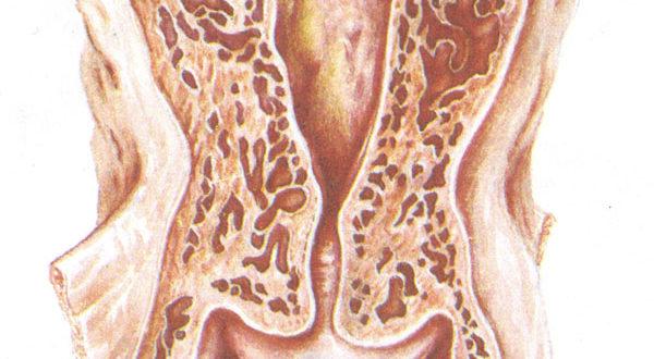 Атипичные сосуды шейки матки – что это такое
