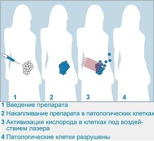 Особенности фотодинамической терапии
