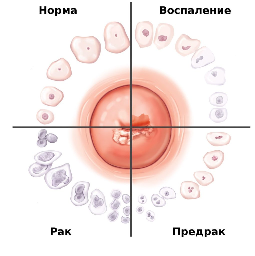 Какие патологии выявляют с помощью кольпоскопии