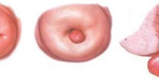 Полипы на шейке матки – что это такое?