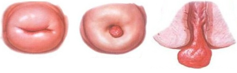 Особенности полипоза