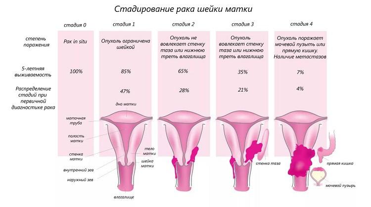 Стадирование рака шейки матки