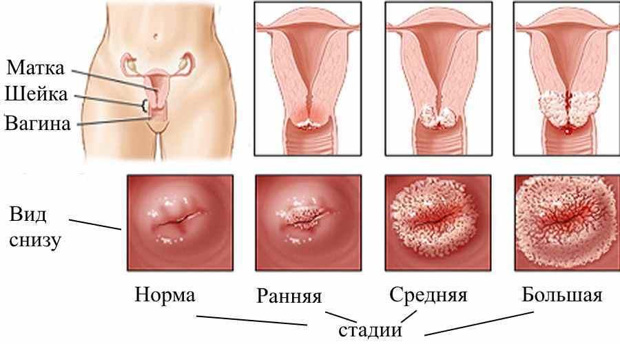 Все о вирусе папилломы шейки матки