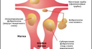 Миомы матки небольших размеров