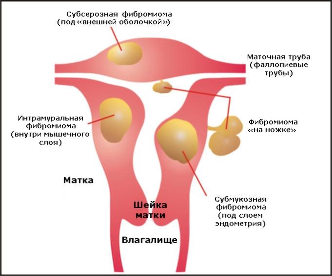 Что такое фибромиома?