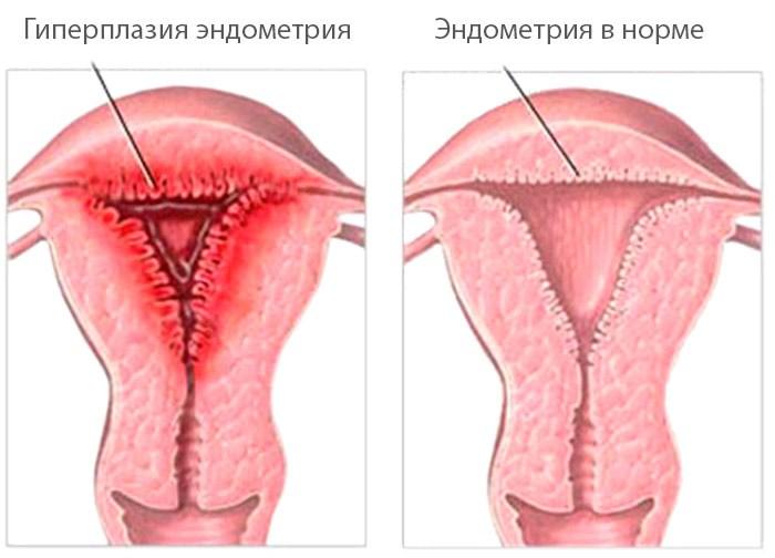 Гиперплизия эндометрия и нормальный эндометрий